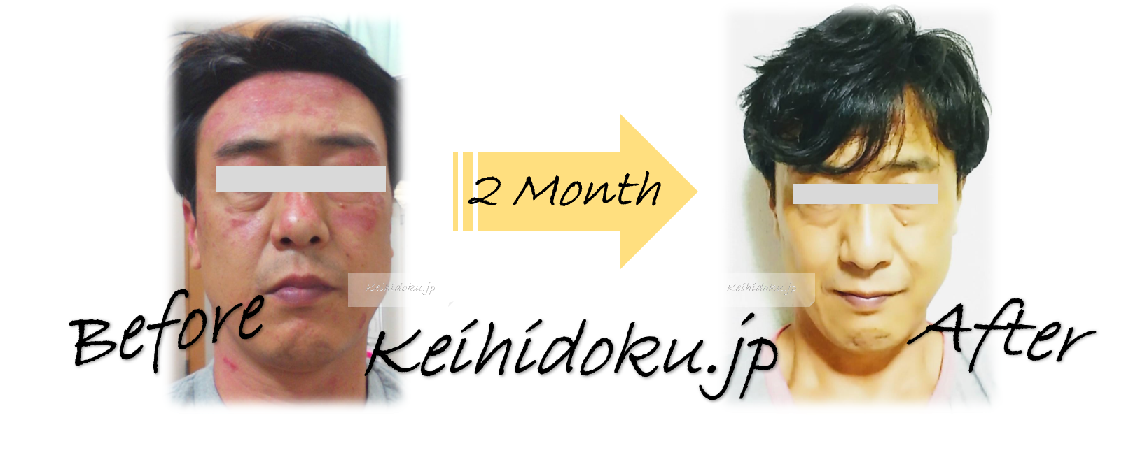 脂漏性皮膚炎 経皮毒のデトックス