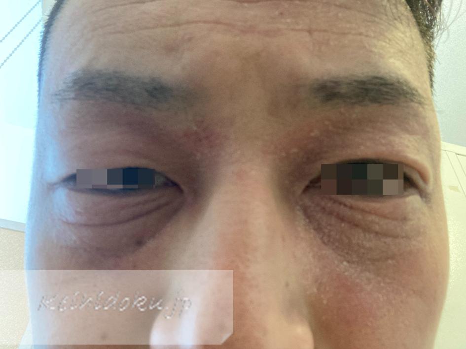 アトピー性皮膚炎がよくなると表情が変わります