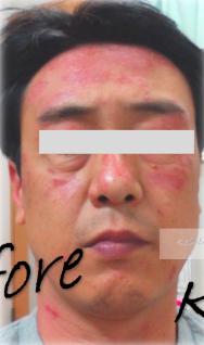 脂漏性皮膚炎の時に使ったデトックス機器を紹介します