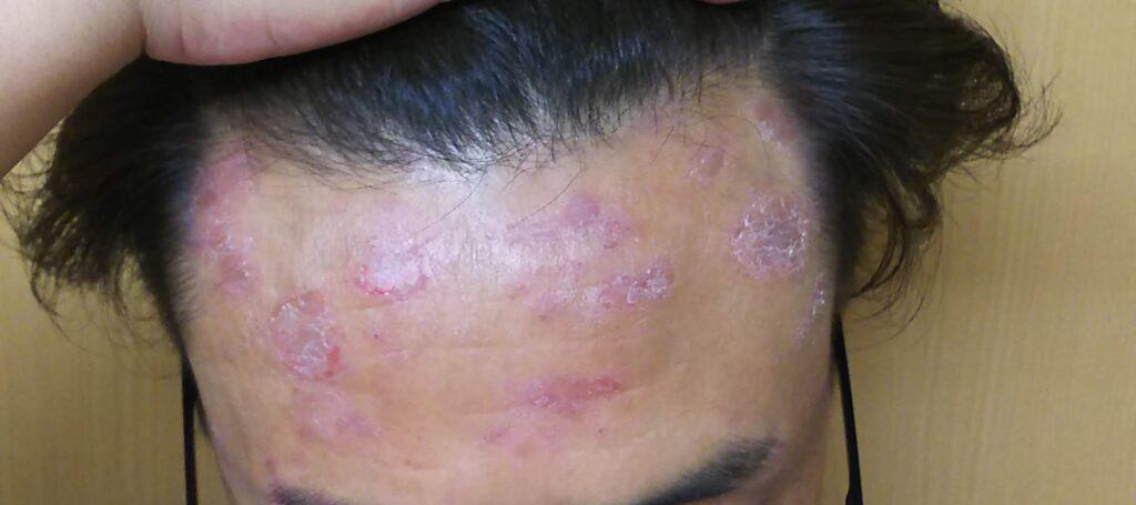 脂漏性皮膚炎はうつる?うつりません、ただ周りから良い感じに思われなね